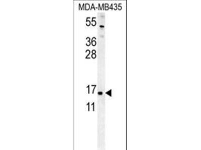 ENY2 Antibody