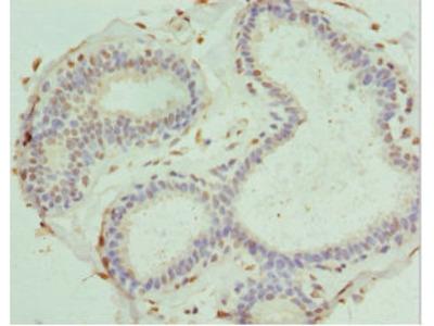 PDXK / PNK Antibody