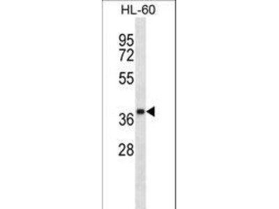 OR5F1 Polyclonal Antibody