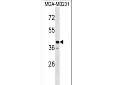 TAS2R31 / T2R31 Antibody
