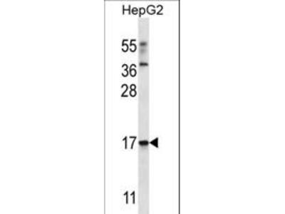 TRIM48 / RNF101 Antibody