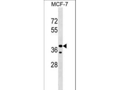 CCBE1 Polyclonal Antibody