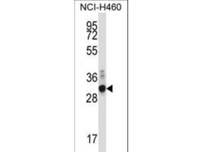 ZFPL1 Polyclonal Antibody
