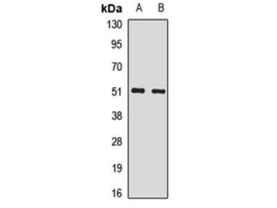 SNRP70 / SNRNP70 Antibody