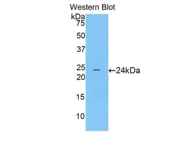 TNNI1 Polyclonal Antibody