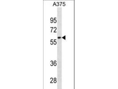 ZNF394 Antibody