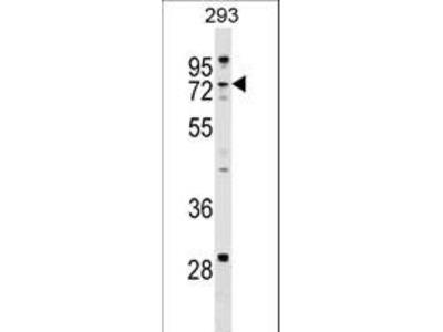 ZCCHC8 Antibody