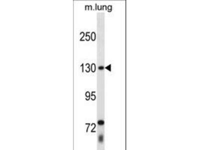 THRAP3 / TRAP150 Antibody
