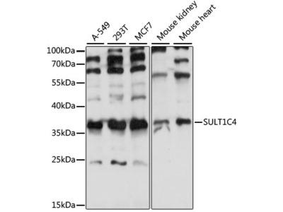 SULT1C4 / Sulfotransferase 1C4 Antibody
