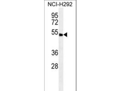 ABHD8 Polyclonal Antibody