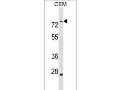 ABLIM3 Polyclonal Antibody