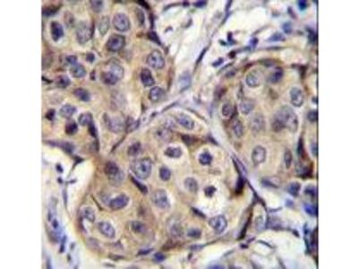 CBLN2 / Cerebellin 2 Antibody