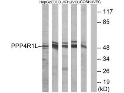 PPP4R1L Antibody