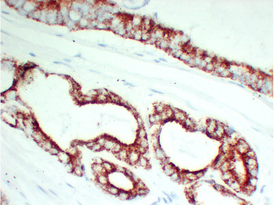 AMACR / P504S Monoclonal Antibody