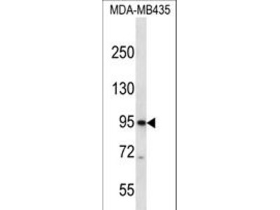 CNGB3 / CNG Channel Beta-3 Polyclonal Antibody