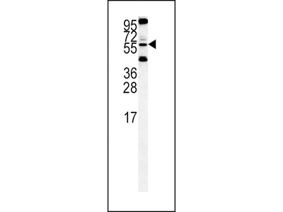 HTRA1 Polyclonal Antibody