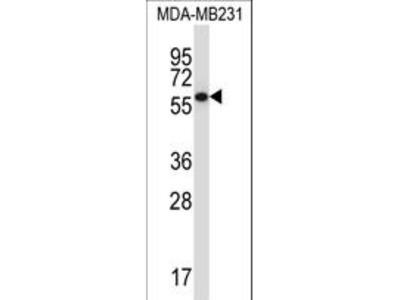 PPP2R5C Antibody