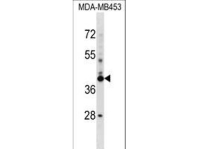 SRRD Polyclonal Antibody