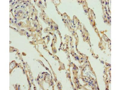 SLC34A1 / NPT2 Antibody