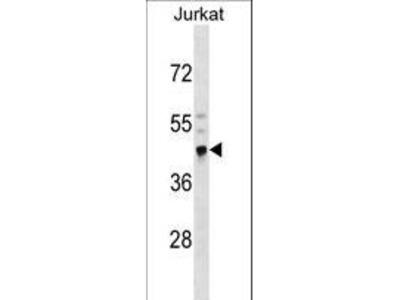 CRELD2 Polyclonal Antibody