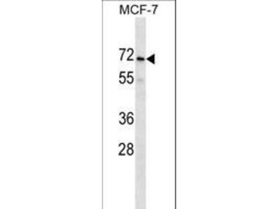 PRAMEF2 Polyclonal Antibody