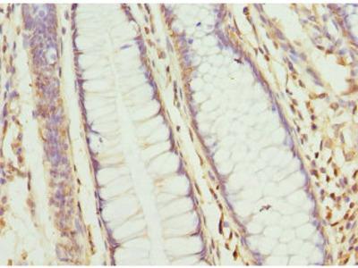 CLC-7 / CLCN7 Antibody