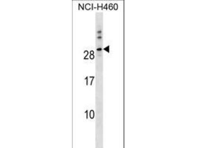 HTTY1 / TTYH1 Antibody