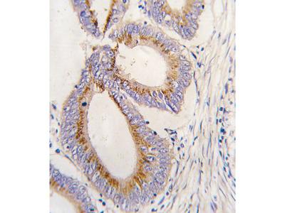 GDF11 / GDF-11 Antibody