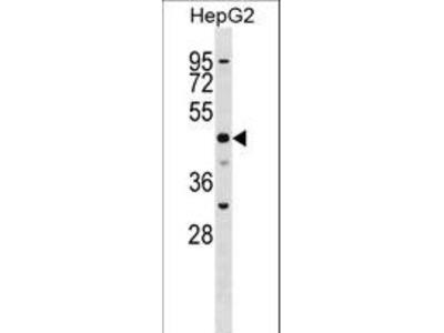 SLC2A9 / GLUT9 Polyclonal Antibody