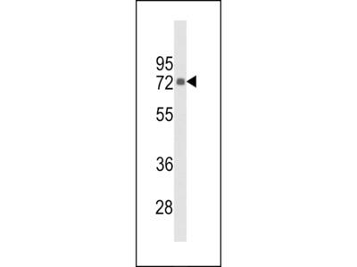 PIP5K1C Antibody
