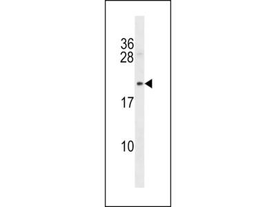 Mycb Polyclonal Antibody