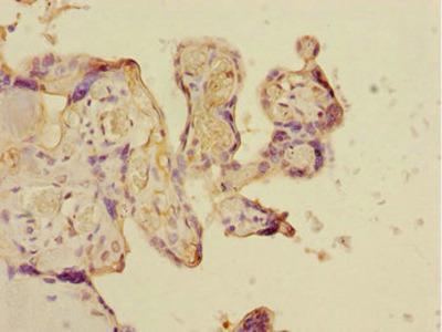 CSRNP2 / FAM130A1 Antibody