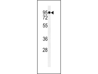 TMEM57 / Macoilin 1 Antibody