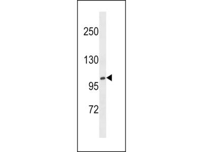 XYLT1 / XylT-I Antibody