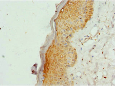 COL9A3 / Collagen IX Antibody
