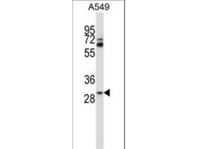 TATDN1 Antibody