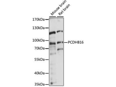 PCDHB16 Antibody