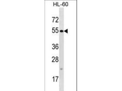 TTC34 Polyclonal Antibody