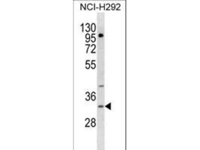 TREML1 / TLT1 Antibody