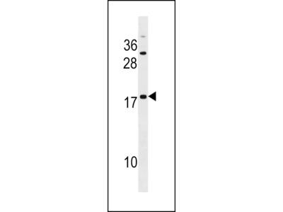 SPANXD Antibody