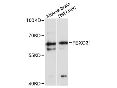 FBXO31 Antibody