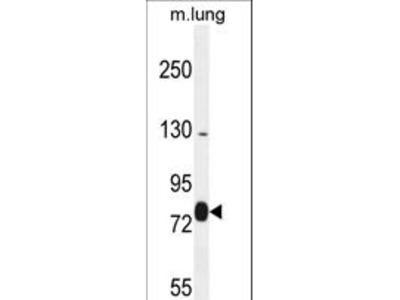 EXOC8 / EXO84 Antibody