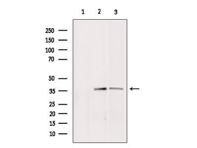 BNIP2 Antibody