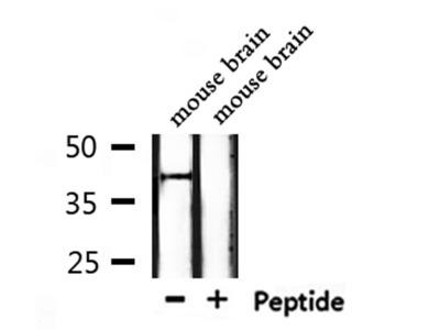 OR5H6/5H14 Antibody