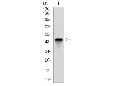 TNNI2 Antibody