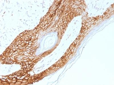 Mouse Anti-E-Cadherin/CD324 Antibody
