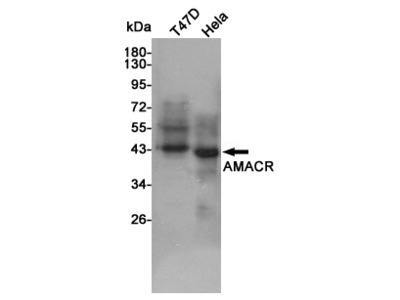 Anti-AMACR/P504S Mouse mAb
