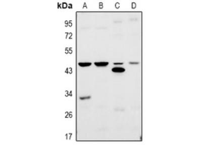 Anti-TRF3 Antibody