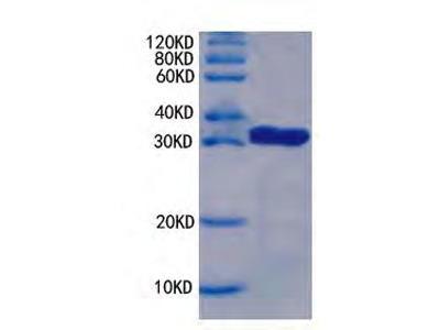 Proliferation marker protein Ki-67