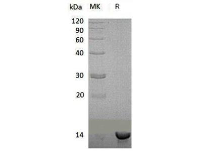 Recombinant Human Sulfotransferase/SULT1C4/SULT1C2 Protein